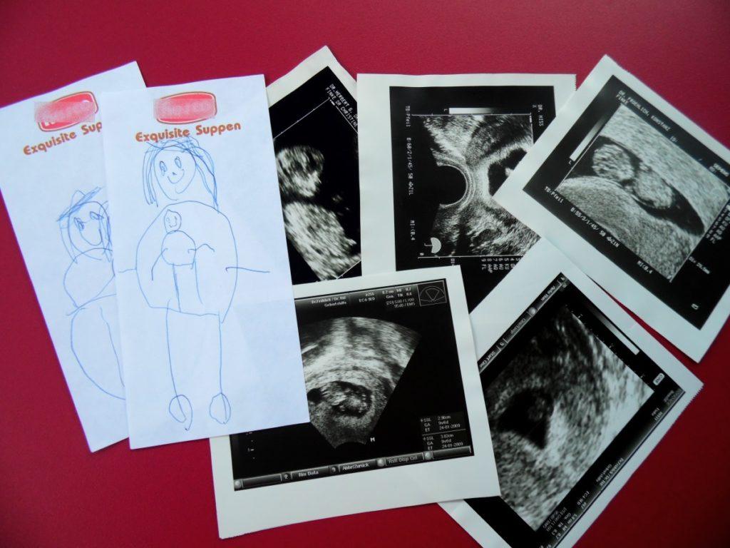 Fehlgeburt und Abtreibung